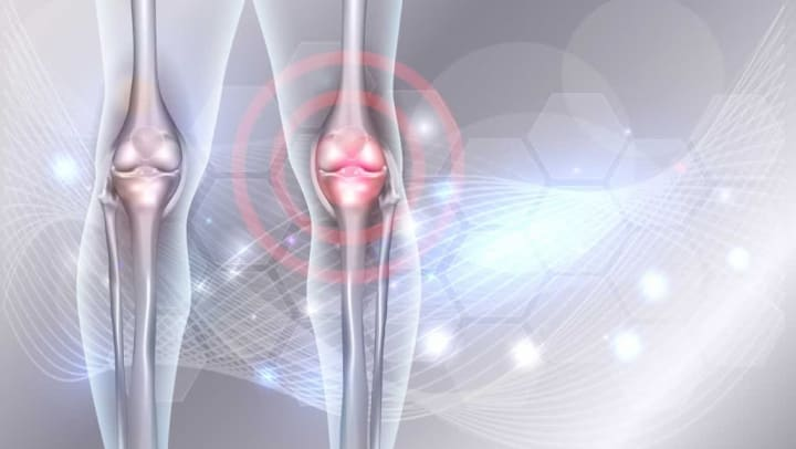 Image of knee joints at {{location_name}} in {{location_city}}, {{location_state_name}}